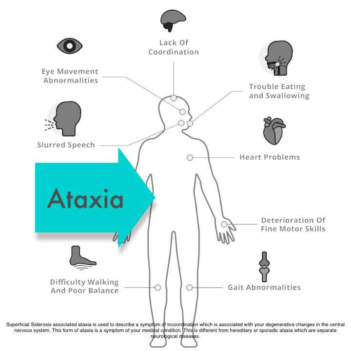 superficial siderosis ataxia