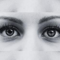 Anisocoria (Unequal Pupils)