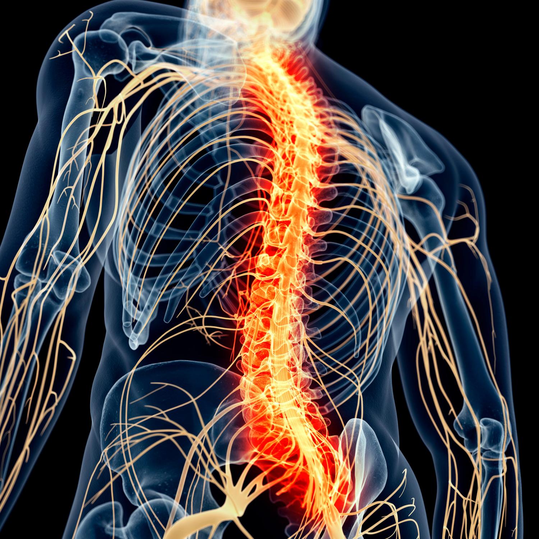 superficial siderosis myelopathy