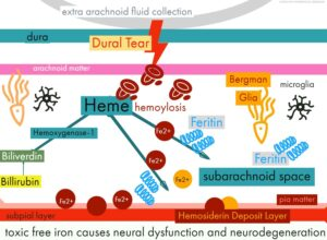 Pathophysiology of Hemosiderin2